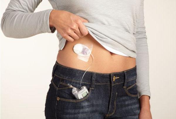 insulinovue-pompu